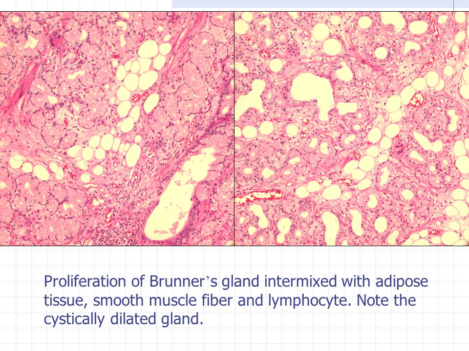 Proliferation of Brunner ' s gland intermixed with adipose tissue, smooth muscle fiber and lymphocyte.