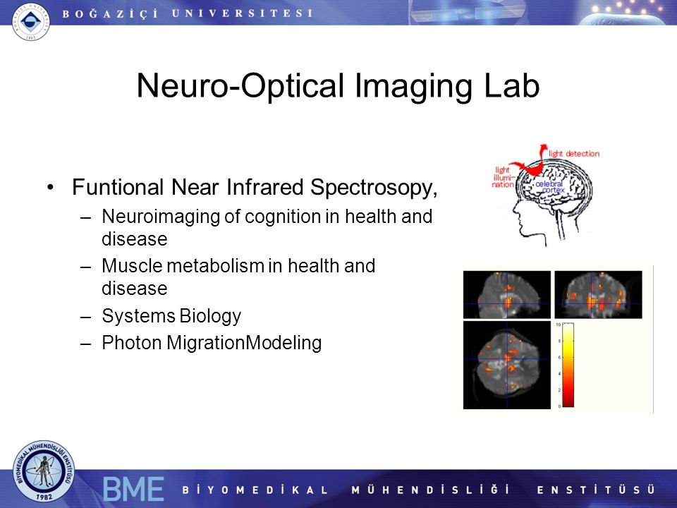 Neuro-Optical Imaging Lab Funtional Near Infrared Spectrosopy, –Neuroimaging of cognition in health and disease –Muscle metabolism in health and disease –Systems Biology –Photon MigrationModeling