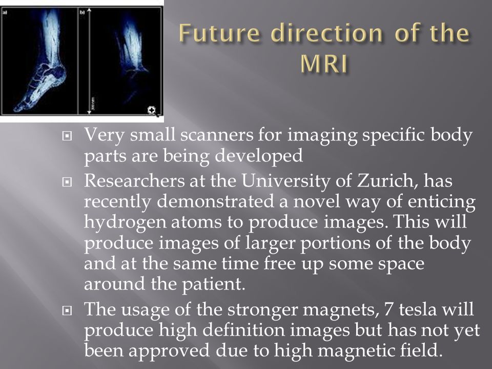  Very small scanners for imaging specific body parts are being developed  Researchers at the University of Zurich, has recently demonstrated a novel way of enticing hydrogen atoms to produce images.