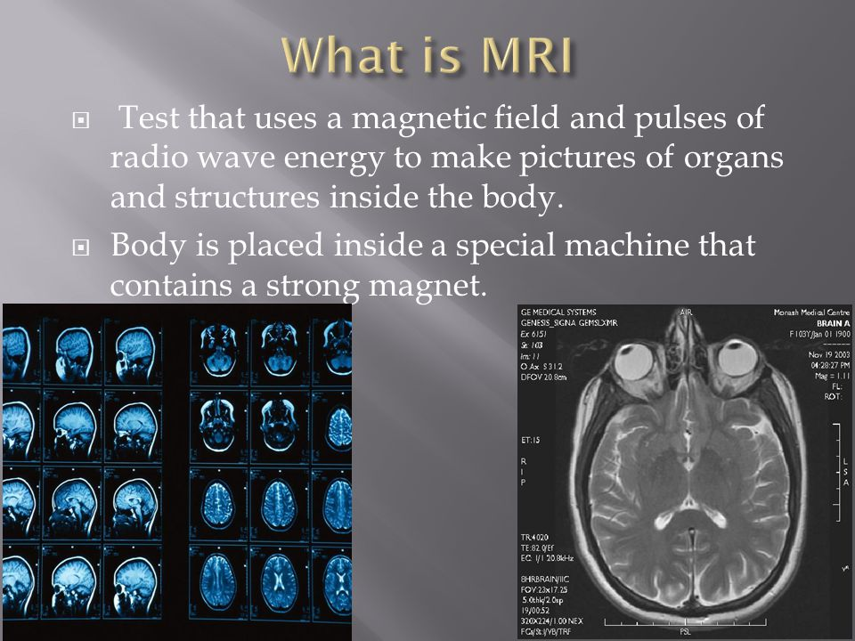  Test that uses a magnetic field and pulses of radio wave energy to make pictures of organs and structures inside the body.