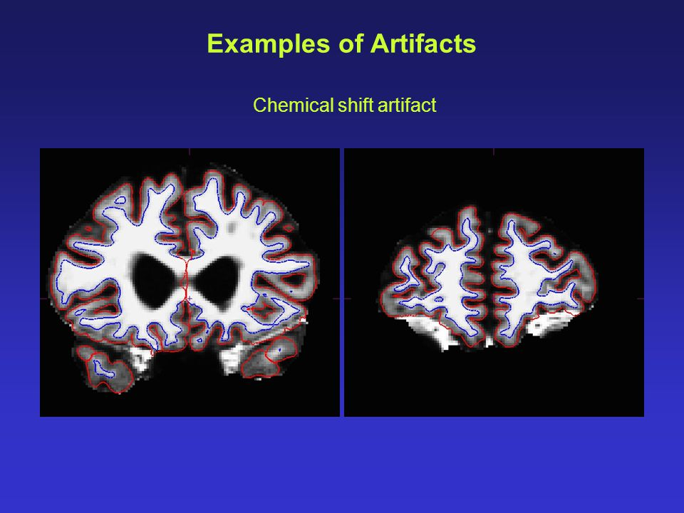 Examples of Artifacts Chemical shift artifact