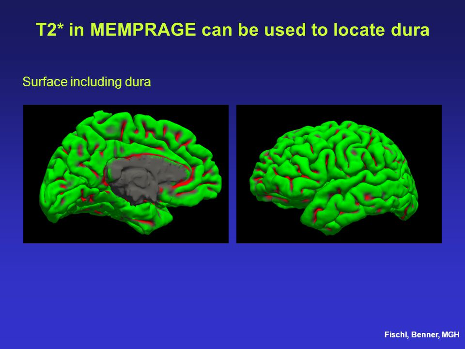 T2* in MEMPRAGE can be used to locate dura Fischl, Benner, MGH Surface including dura
