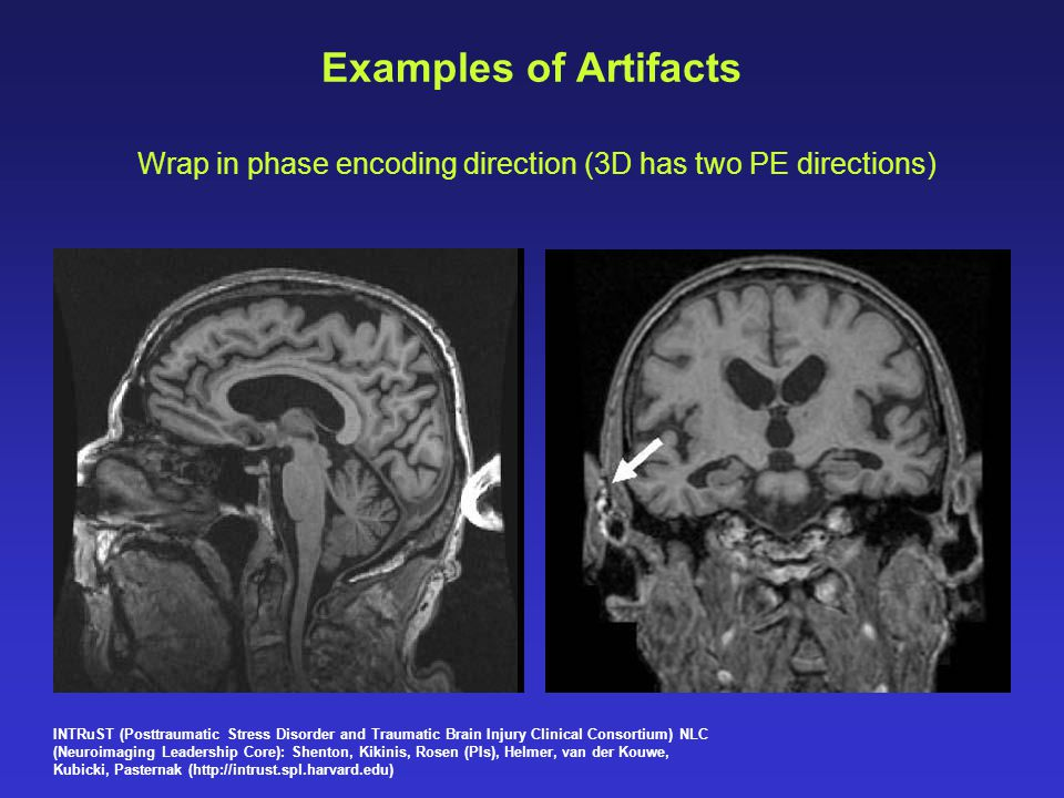 Examples of Artifacts Wrap in phase encoding direction (3D has two PE directions) INTRuST (Posttraumatic Stress Disorder and Traumatic Brain Injury Cl