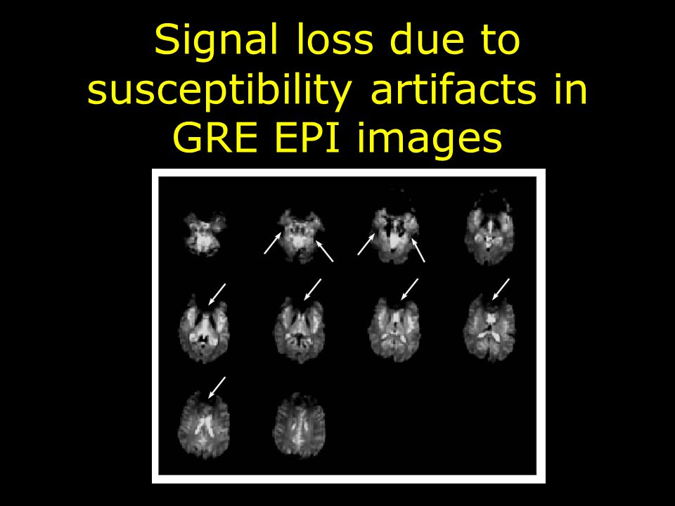 Signal loss due to susceptibility artifacts in GRE EPI images