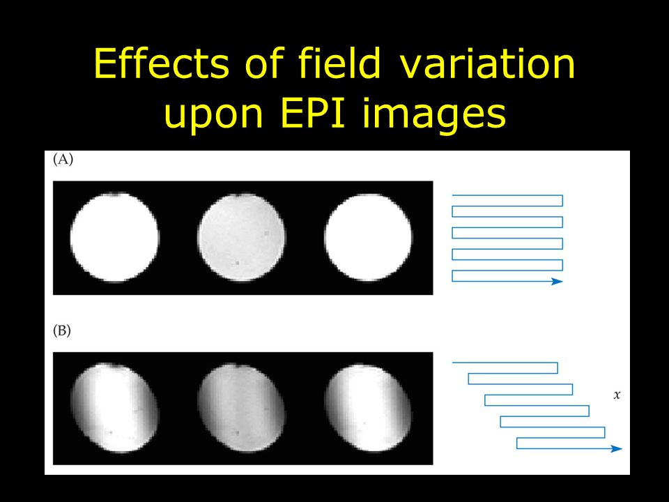 Effects of field variation upon EPI images