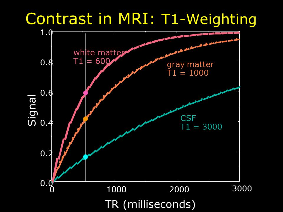 3000 200010000 0.0 0.2 0.4 0.6 0.8 1.0 TR (milliseconds) Signal gray matter T1 = 1000 CSF T1 = 3000 white matter T1 = 600 Contrast in MRI: T1-Weighting