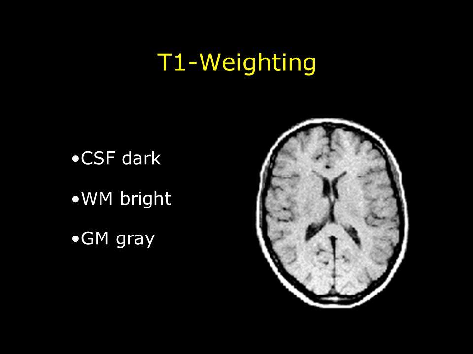 T1-Weighting CSF dark WM bright GM gray