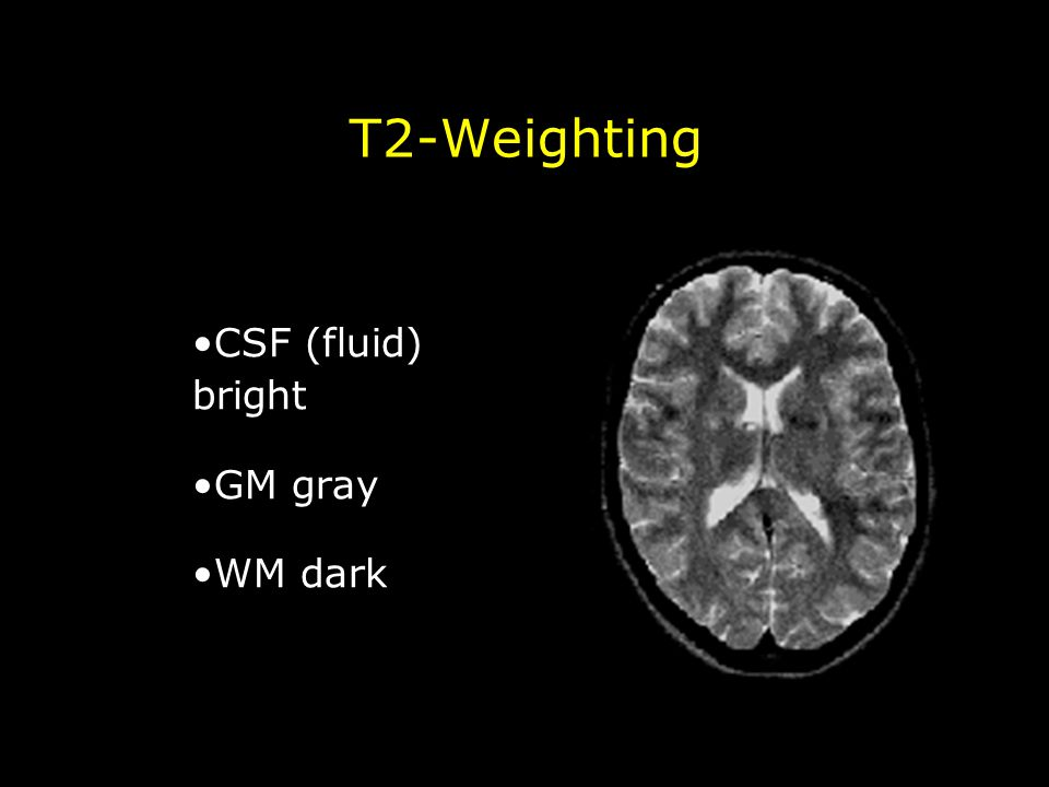 T2-Weighting CSF (fluid) bright GM gray WM dark