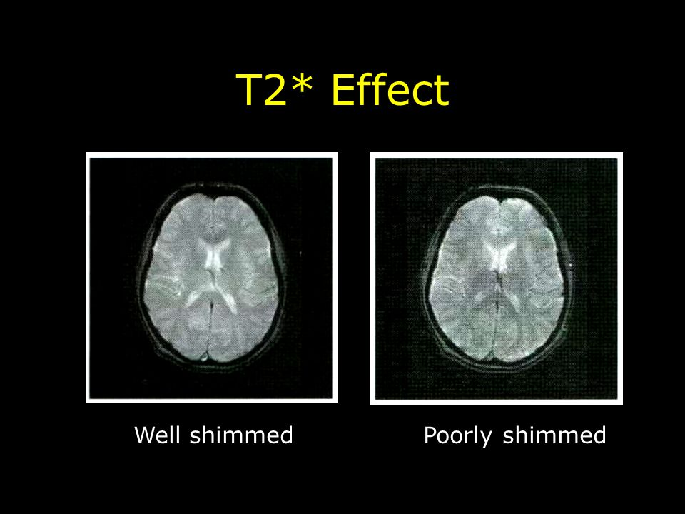 T2* Effect Well shimmed Poorly shimmed
