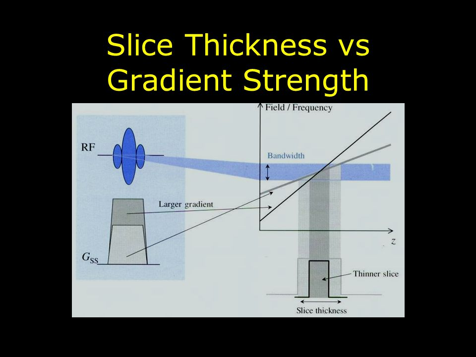 Slice Thickness vs Gradient Strength