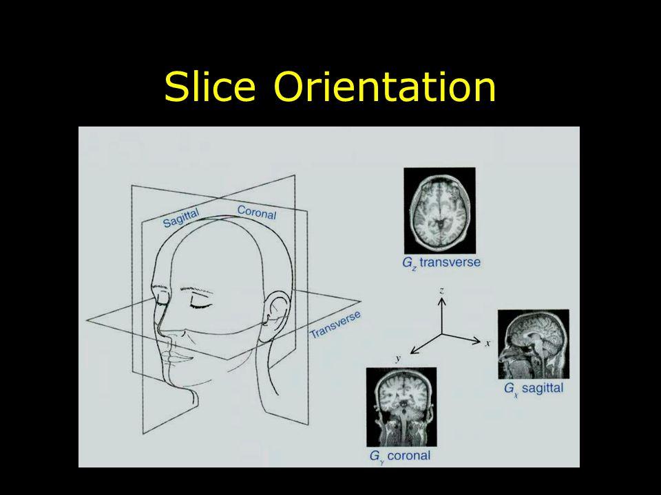 Slice Orientation