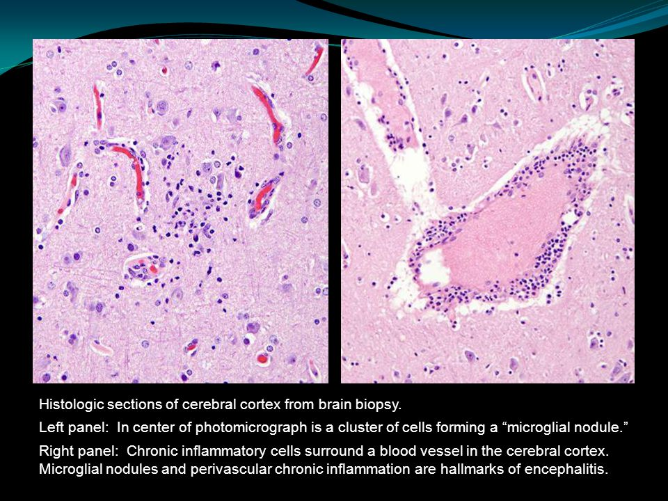 "Histologic sections of cerebral cortex from brain biopsy. Left panel: In center of photomicrograph is a cluster of cells forming a ""microglial nodule."
