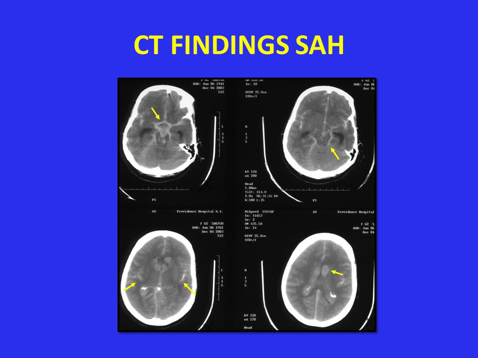 IMAGING OF STROKE CT – Better identification of acute hemorrhage – Availability – Decrease expense – Decrease time – Less contraindications MRI – More sensitive to early changes of stroke ie.