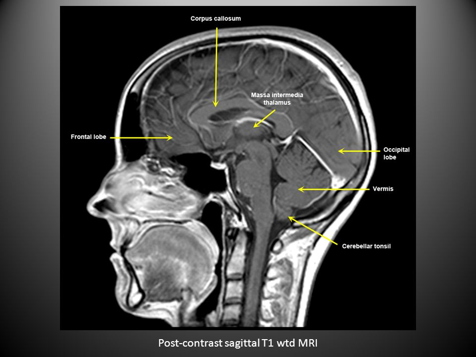 Pre-contrast axial T2 wtd MRI of cervical spine at C5-C6 level