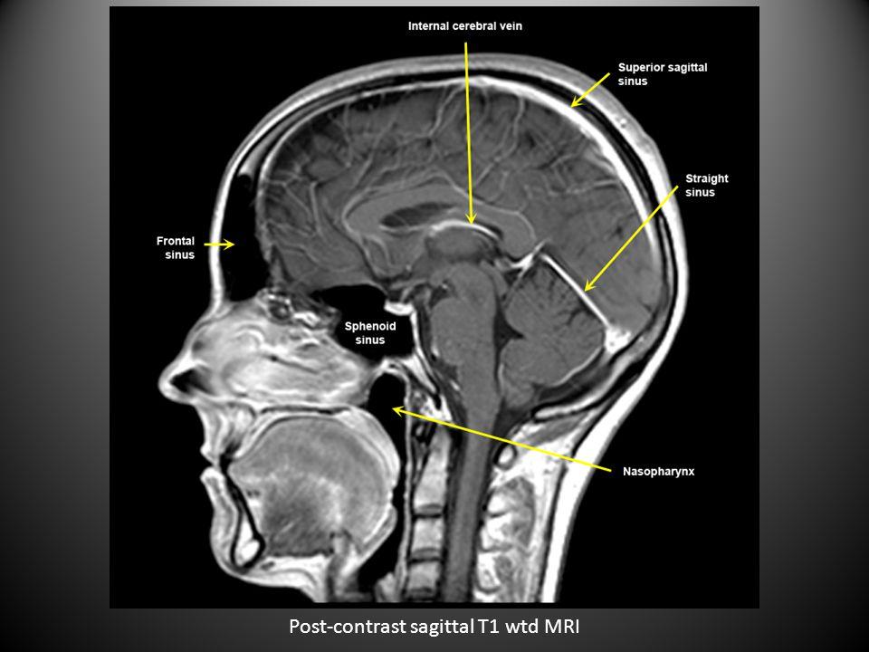 Pre-contrast sagittal T1 wtd MRI of cervical spine