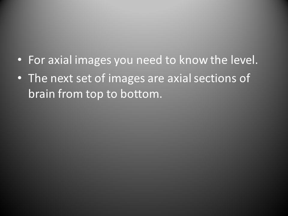 Pre-contrast axial T1 wtd MRI