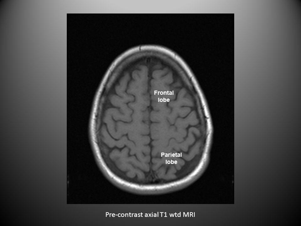 Sagittal T2 wtd MRI of lumbar spine CSF bright in T2 wtd image