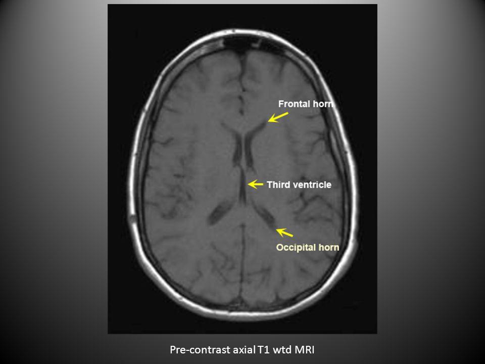 Pre Contrast CT Brain 6