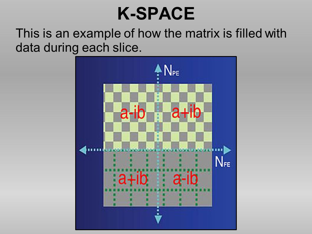 K-SPACE This is an example of how the matrix is filled with data during each slice.