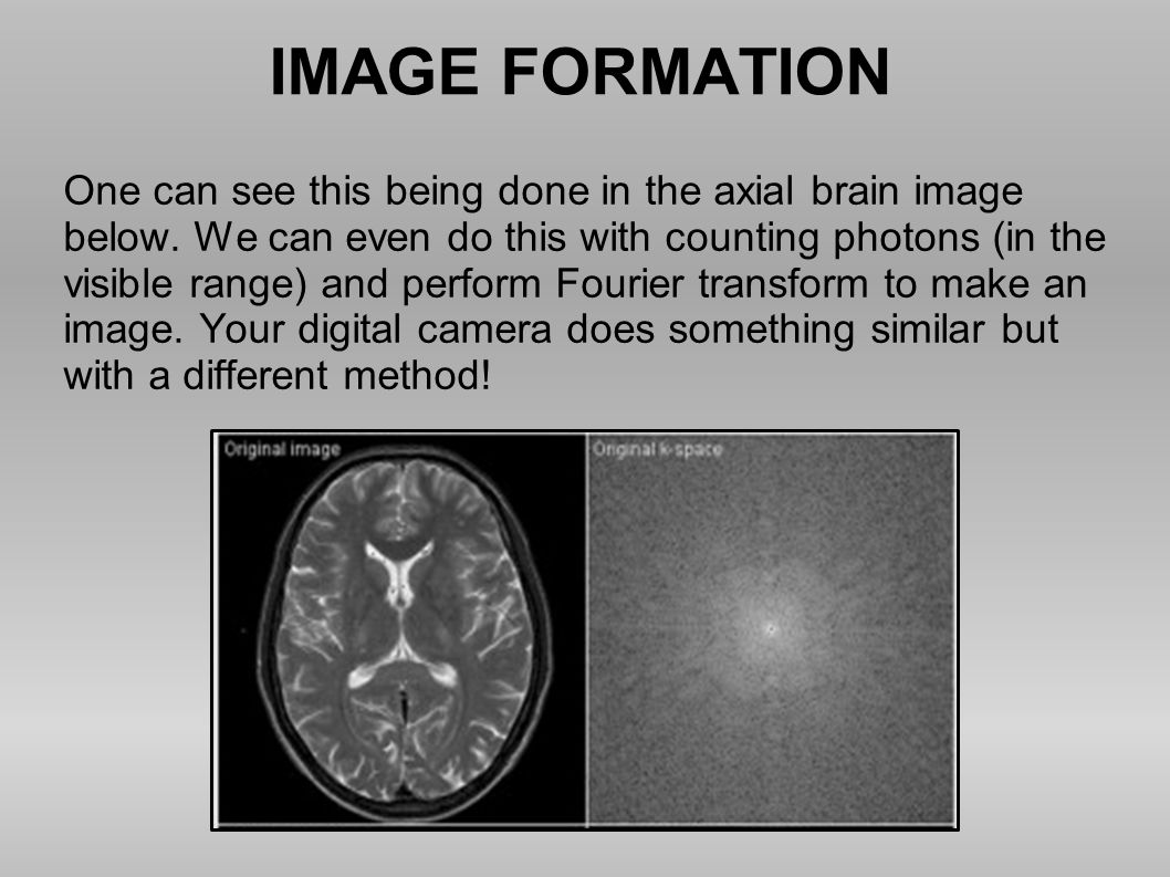 IMAGE FORMATION One can see this being done in the axial brain image below. We can even do this with counting photons (in the visible range) and perfo