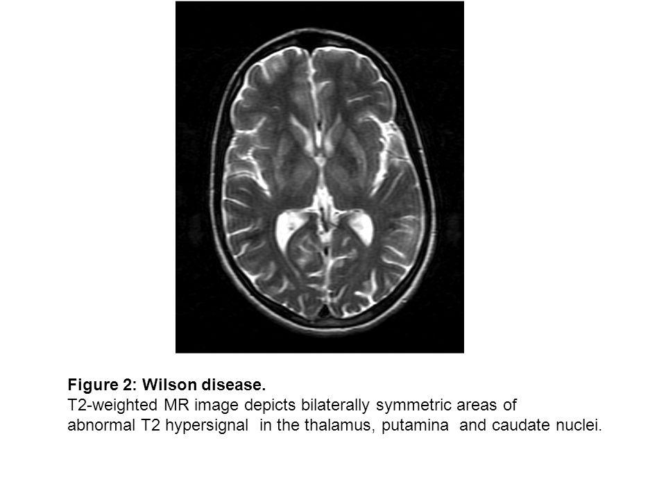 Figure 2: Wilson disease.