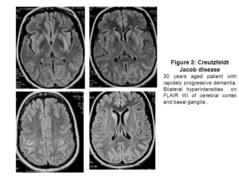 Figure 3: Creutzfeldt Jacob disease 30 years aged patient with rapidely progressive demantia.