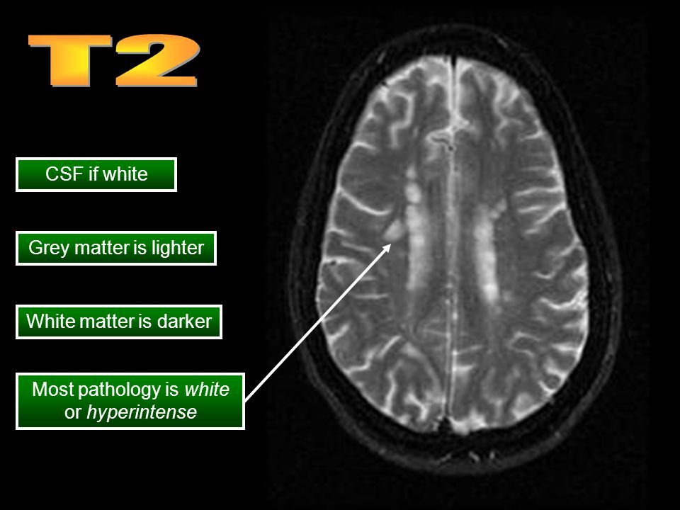 CSF if white Grey matter is lighter White matter is darker Most pathology is white or hyperintense