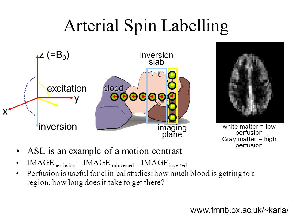 Arterial Spin Labelling ASL is an example of a motion contrast IMAGE perfusion = IMAGE uninverted – IMAGE inverted Perfusion is useful for clinical st