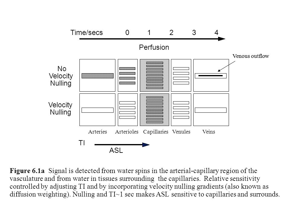 Venous outflow Perfusion No Velocity Nulling Velocity Nulling ASL TI Time/secs12403 Venous outflow Figure 6.1a Signal is detected from water spins in