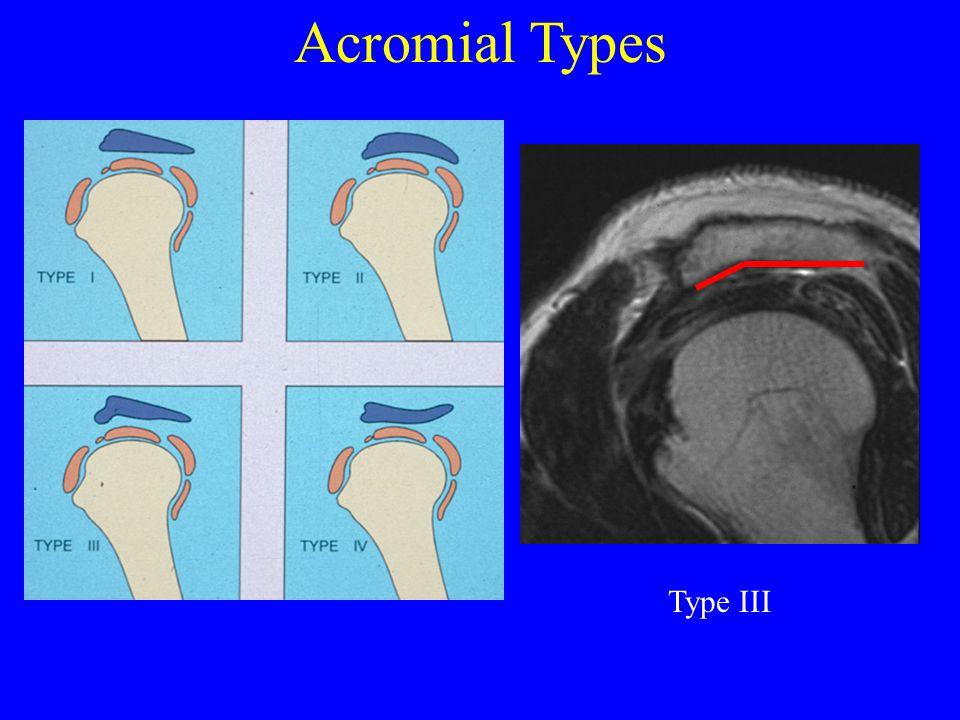 Acromial Types Type III