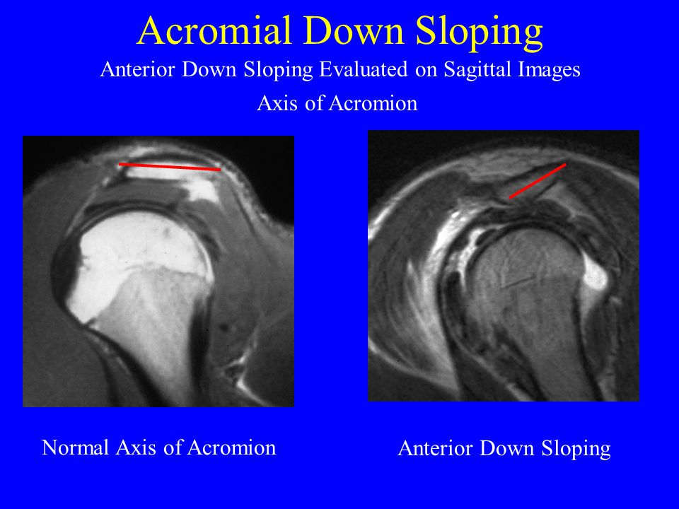 Acromial Down Sloping Normal Axis of Acromion Anterior Down Sloping Anterior Down Sloping Evaluated on Sagittal Images Axis of Acromion