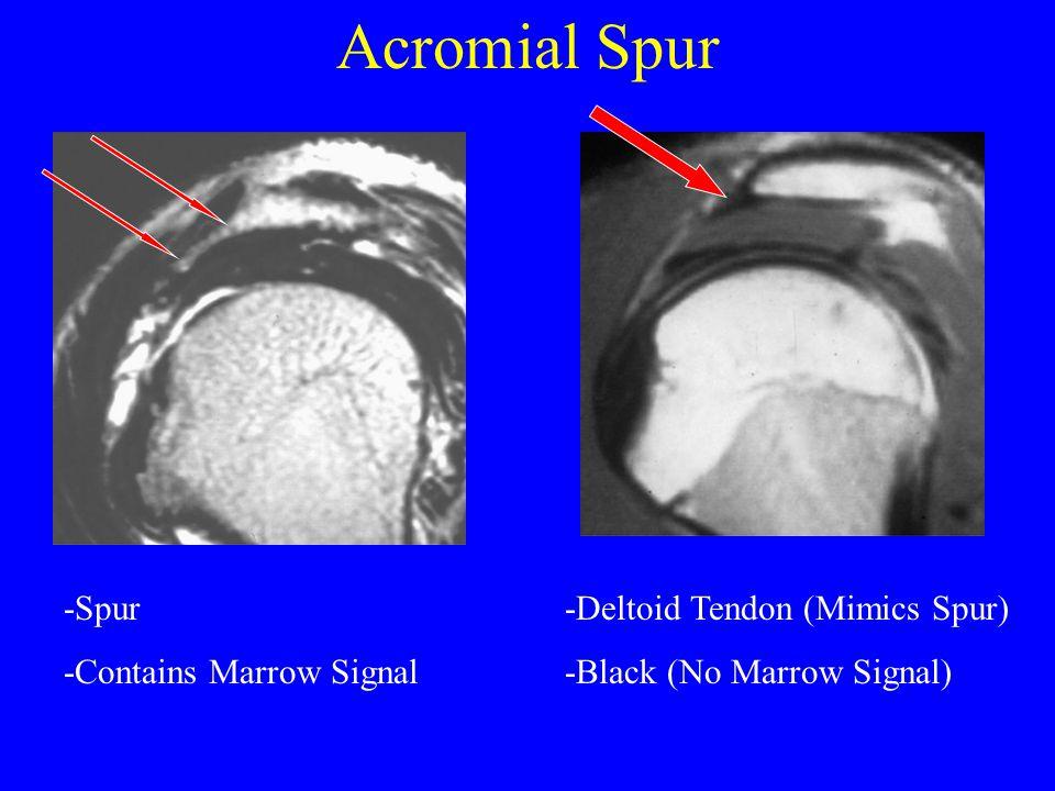 Acromial Spur -Spur -Contains Marrow Signal -Deltoid Tendon (Mimics Spur) -Black (No Marrow Signal)