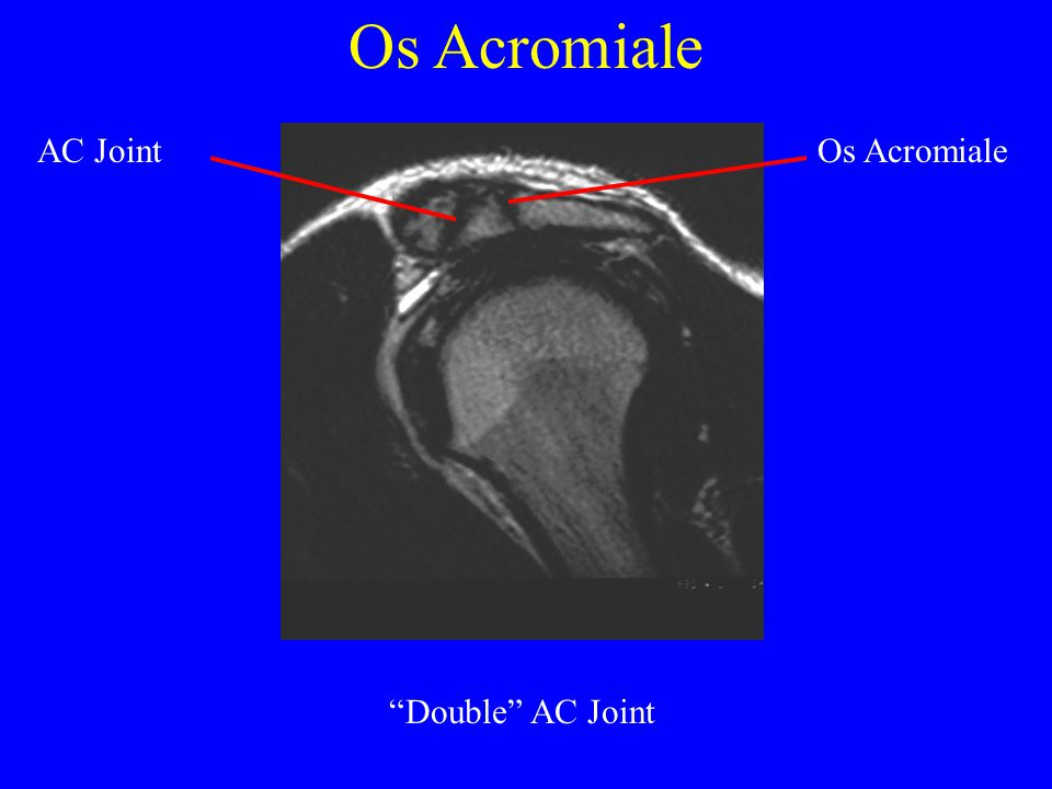 """Os Acromiale """"Double"""" AC Joint AC JointOs Acromiale"""