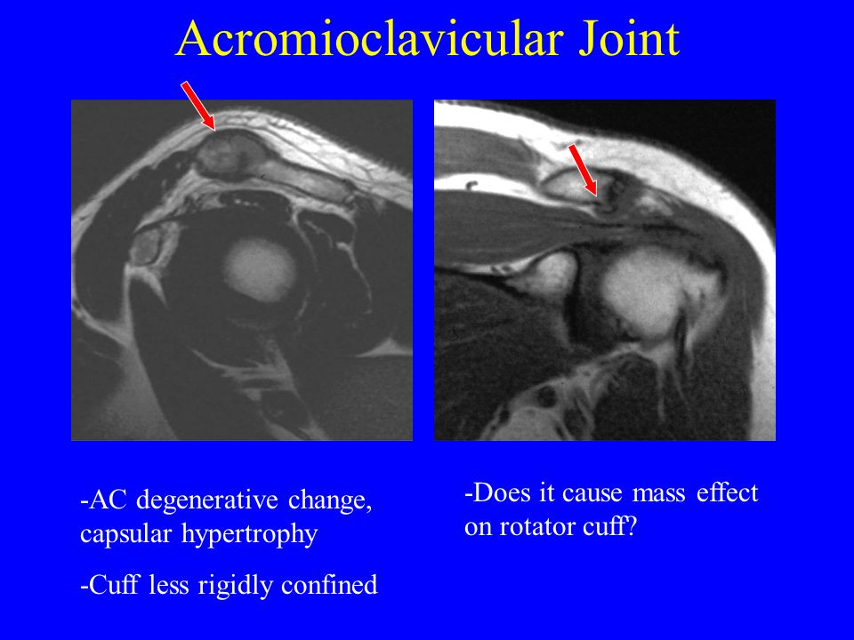 Acromioclavicular Joint -AC degenerative change, capsular hypertrophy -Cuff less rigidly confined -Does it cause mass effect on rotator cuff?