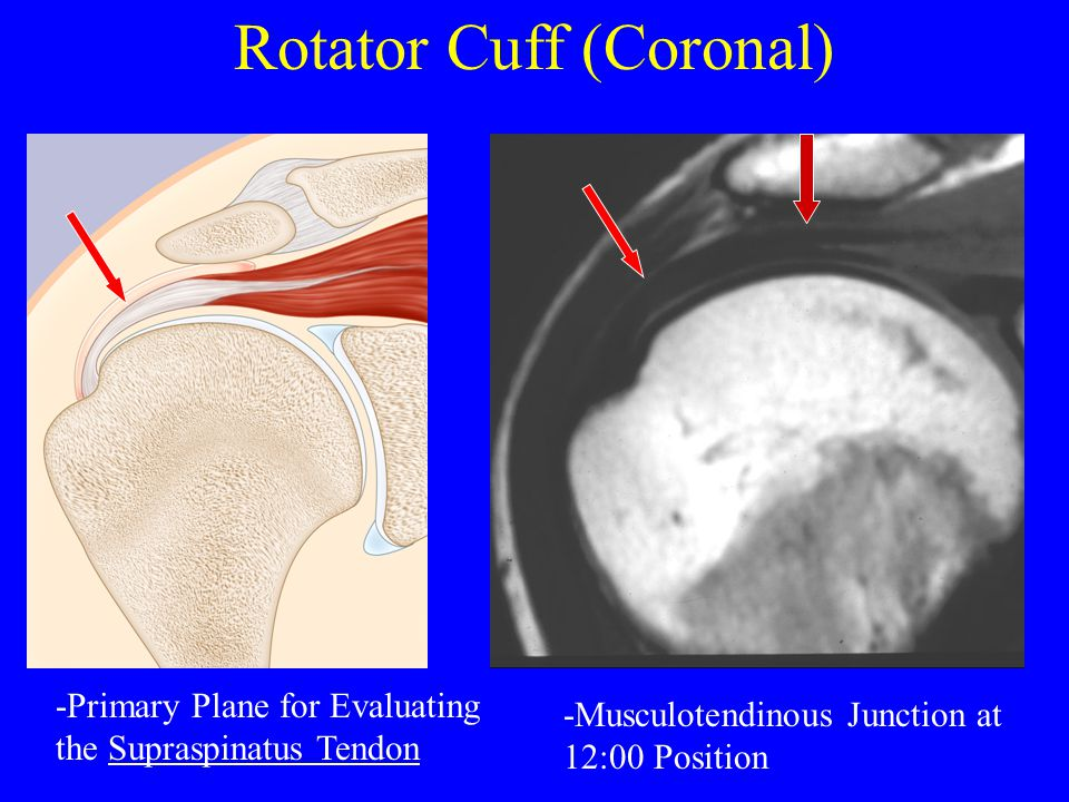 Rotator Cuff (Coronal) -Primary Plane for Evaluating the Supraspinatus Tendon -Musculotendinous Junction at 12:00 Position