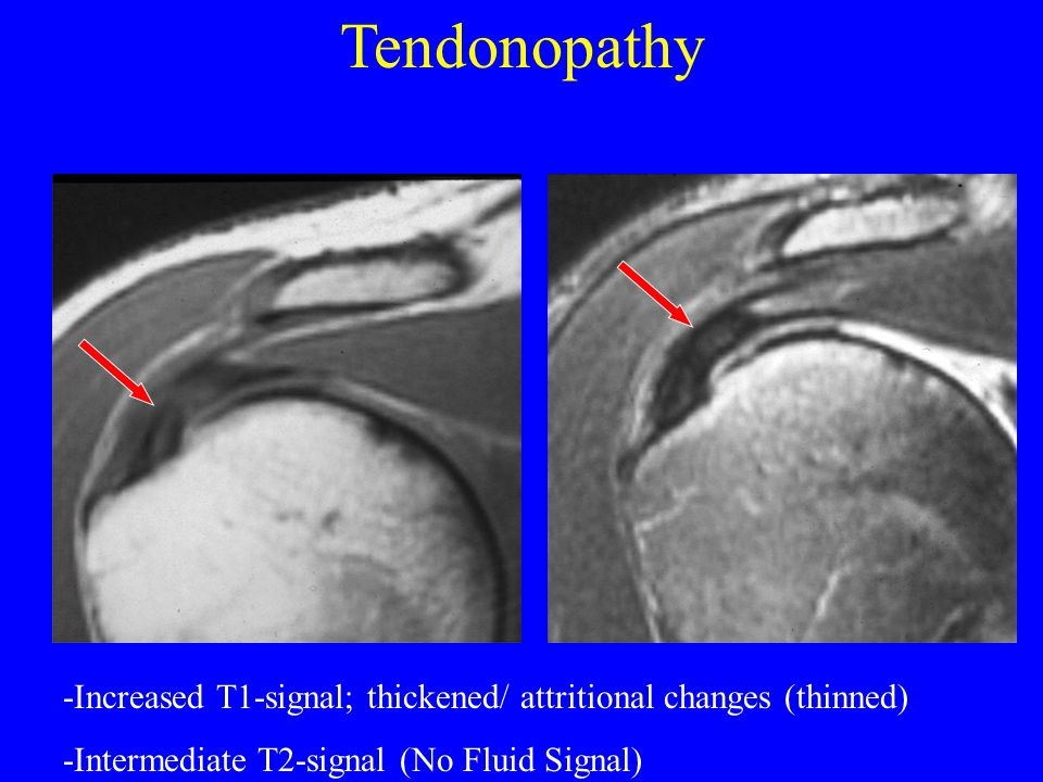 Tendonopathy -Increased T1-signal; thickened/ attritional changes (thinned) -Intermediate T2-signal (No Fluid Signal)