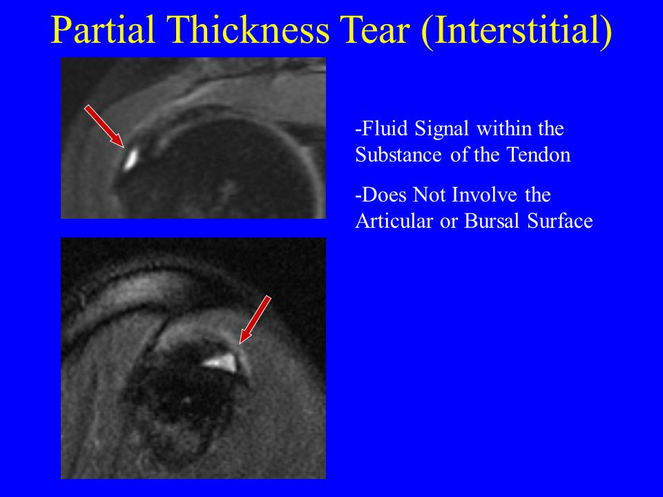 Partial Thickness Tear (Interstitial) -Fluid Signal within the Substance of the Tendon -Does Not Involve the Articular or Bursal Surface