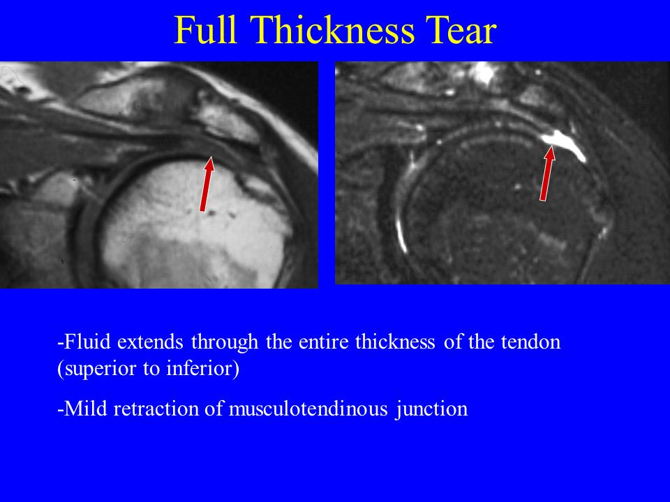 Full Thickness Tear -Fluid extends through the entire thickness of the tendon (superior to inferior) -Mild retraction of musculotendinous junction