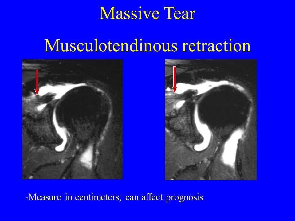 Massive Tear Musculotendinous retraction -Measure in centimeters; can affect prognosis