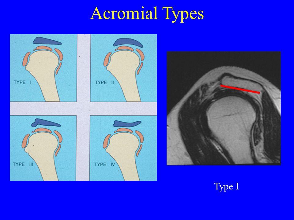 Acromial Types Type I