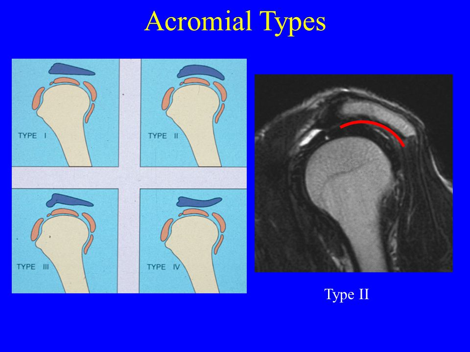 Acromion Type (I, II, III) Anterior/ Lateral Down Sloping Inferior Spur Os Acromiale
