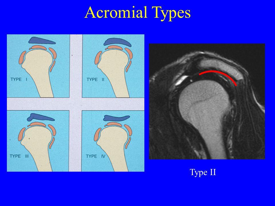 Acromial Types Type II