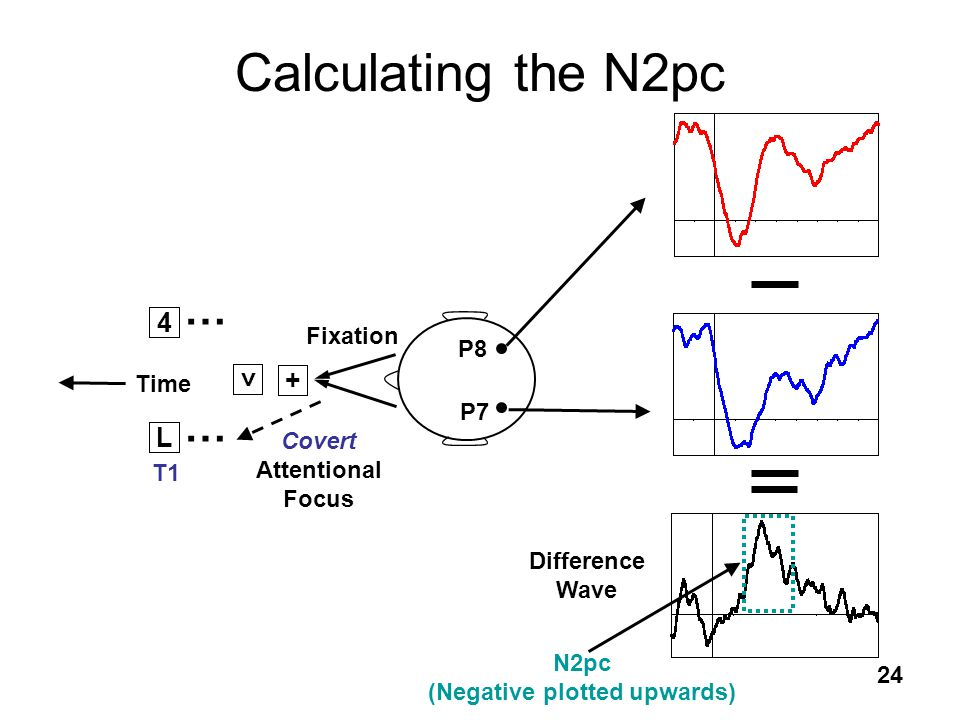 24 Covert Attentional Focus P7 P8 Difference Wave Calculating the N2pc L T1 Time N2pc (Negative plotted upwards) 4 + < Fixation … …