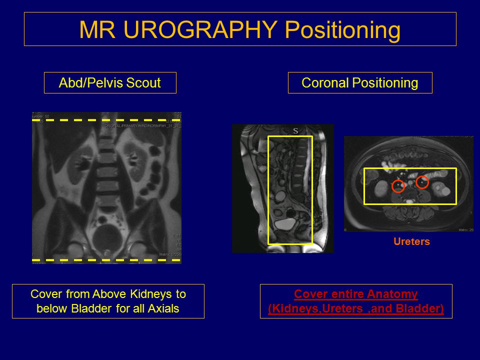 MR UROGRAPHY Positioning Abd/Pelvis Scout Cover from Above Kidneys to below Bladder for all Axials Coronal Positioning Ureters Cover entire Anatomy (K