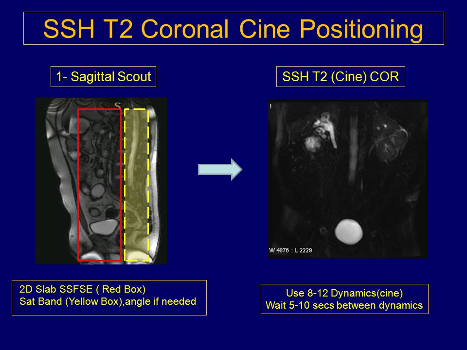 SSH T2 Coronal Cine Positioning Use 8-12 Dynamics(cine) Wait 5-10 secs between dynamics 2D Slab SSFSE ( Red Box) Sat Band (Yellow Box),angle if needed