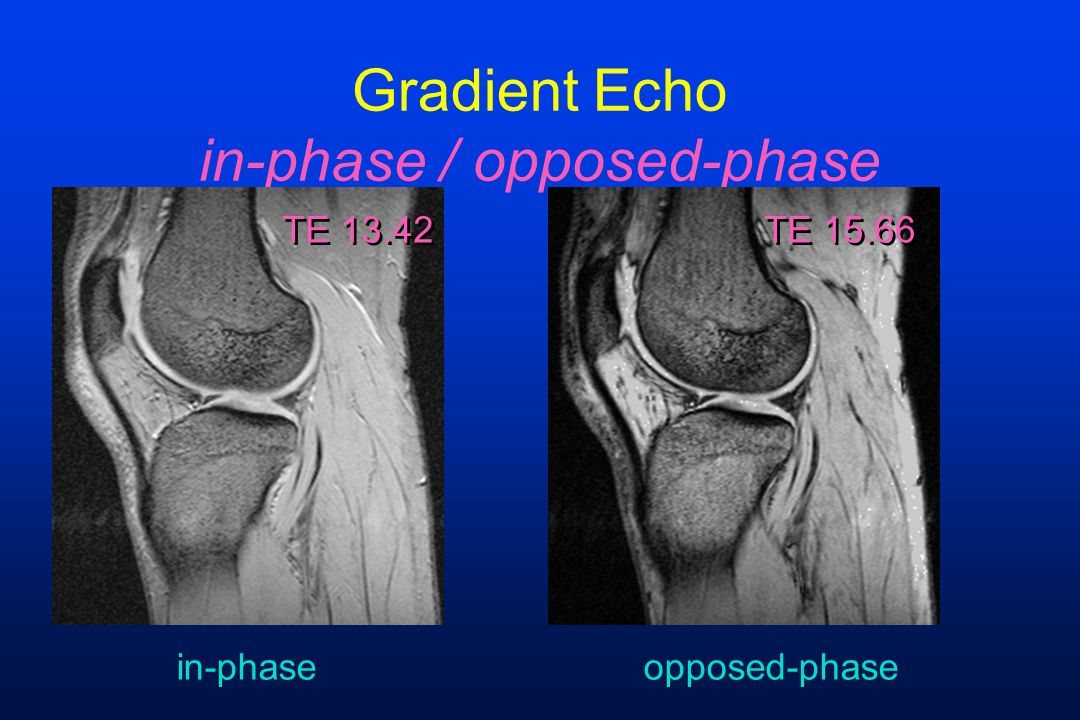 Gradient Echo in-phase / opposed-phase TE 13.42 TE 15.66 in-phaseopposed-phase