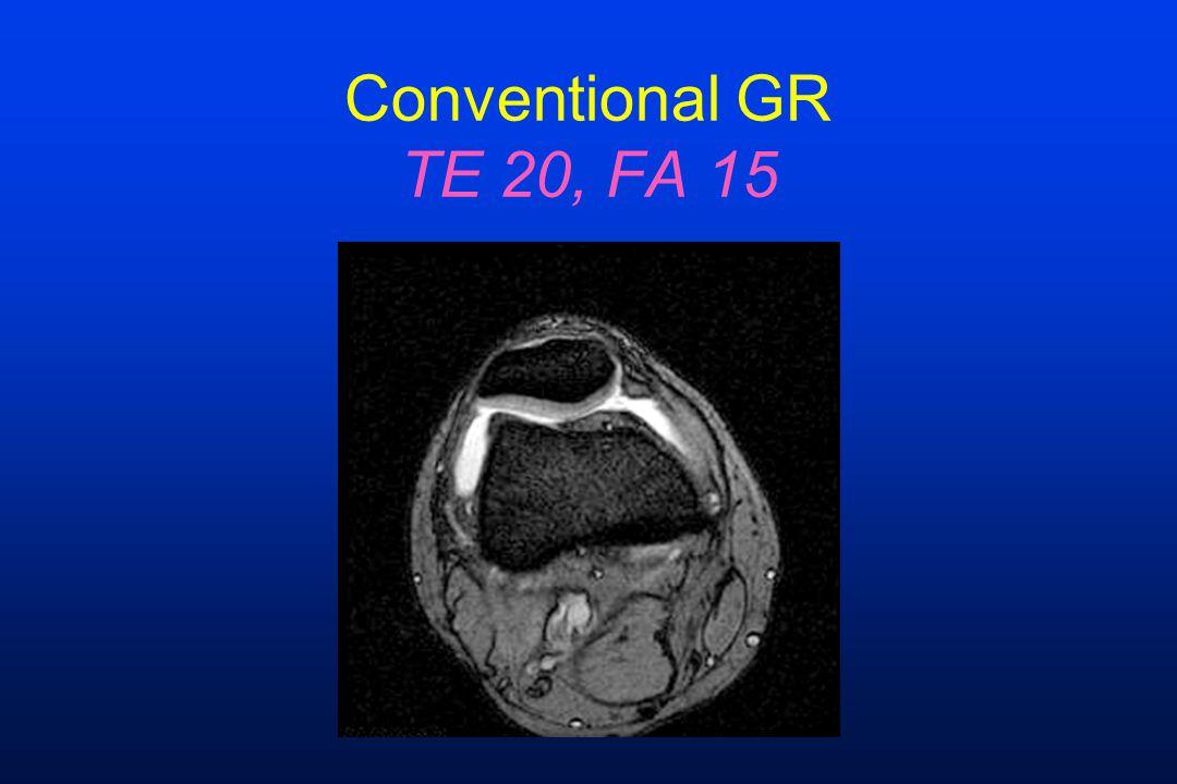 Conventional GR TE 20, FA 15