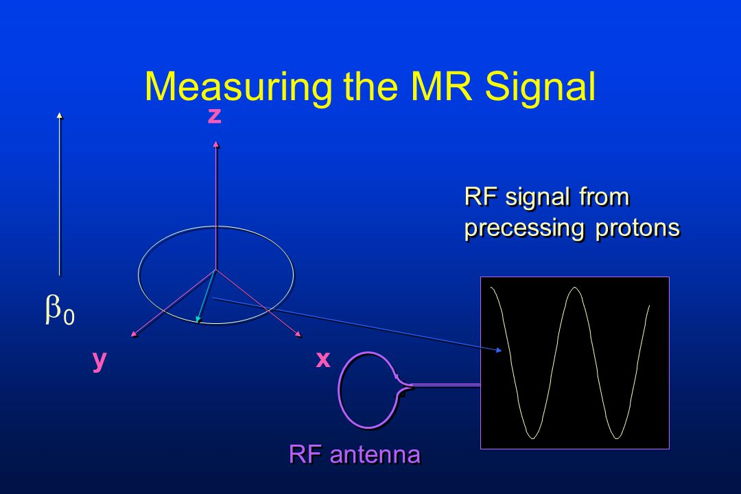 Measuring the MR Signal z yx RF signal from precessing protons RF signal from precessing protons RF antenna 00