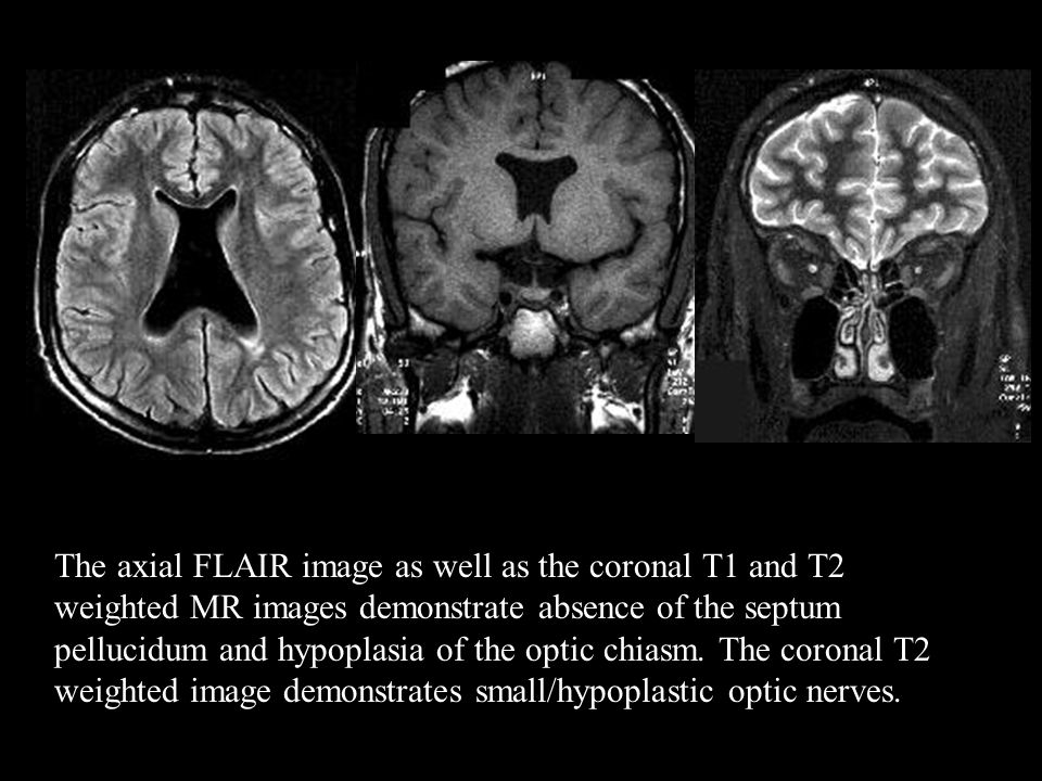 The axial FLAIR image as well as the coronal T1 and T2 weighted MR images demonstrate absence of the septum pellucidum and hypoplasia of the optic chiasm.