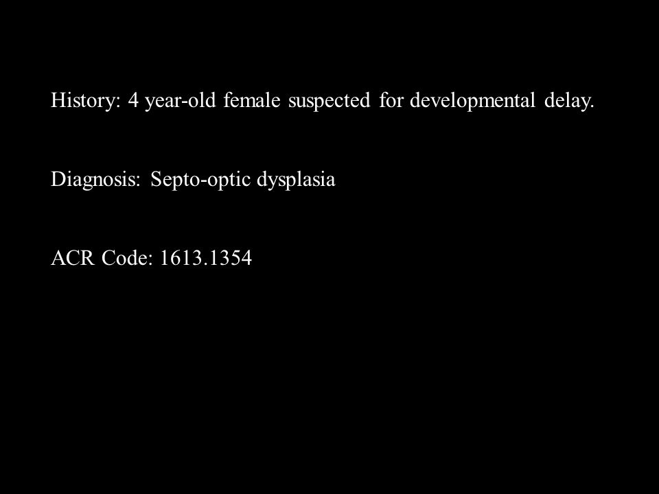 History: 4 year-old female suspected for developmental delay.